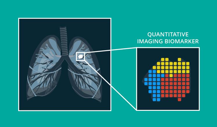 Quantitative imaging biomarkers